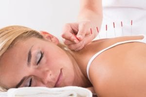 relaxation is one of the befits of acupuncture